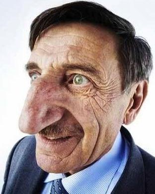 مهمت اوزیوریک متولد سال 1949 ترکیه است . او  با داشتن دماغ 8.8 سانی متری گنده ترین دماغ دنیا را به خود اختصاص داده است.